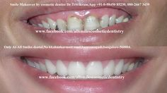 Stunning Smile makeovers by expert cosmetic dentist Dr Trivikram in Bangalore.teeth can be straightened or corrected without braces/orthodontic treatment and can be completed in just 5-7 days in 2-3 visits.+91-80-26673439, 98450 85230. More at http://www.allsmilesdc.org/cosmetic-dentistry/