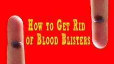 How to Get Rid of Blood Blisters Best Beauty Tips, Beauty Hacks, How To Get Rid, Youtube, Beauty Tricks, Beauty Tips, Beauty Secrets