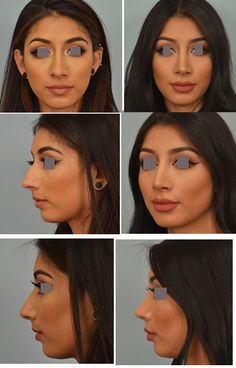 Rhinoplasty Los Angeles by a world known nose surgeon in Glendale Dr. Vladimir Grigoryants