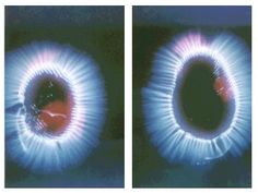Vibracion, centros fisicos centros espirituales, chakra o plexo, camara kirlian