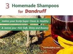 Shampoo detergents are one of the worst culprits for allergic reactions that lead to dandruff. If you switch to homemade shampoo, you can expect a big difference in your dandruff. Here are 3 simple homemade shampoos for itchy, flaky scalp … Hair Dandruff, Dandruff Remedy, Anti Dandruff Shampoo, Natural Shampoo, Flaky Scalp, Dry Scalp, Itchy Scalp Treatment, Scalp Treatments
