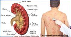 Early Signs of Kidney Disease
