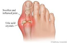 Read more about Gout remedy system! http://www.outwithgout.com/?hop=miller1983