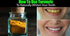 Viral Alternative News: 3-Ingredient Turmeric Powder Recipe To Eliminate Cavities And Whiten Teeth Naturally