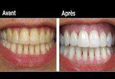Faites blanchir vos dents jaunies en moins de 2 minutes avec cette astuce…