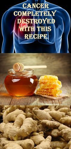 honey & ginger-Cancer is allegedly incurable, according to doctors, but there are numerous people with this disease that are cured every day with herbs and natural remedies. Health And Nutrition, Health And Wellness, Health Fitness, Natural Medicine, Herbal Medicine, Health And Beauty Tips, Health Tips, Cancer Fighting Foods, Cancer Cure