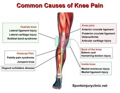 Where is your knee pain and what could be causing it? These are the most common causes of medial, lateral, anterior and posterior knee pain!
