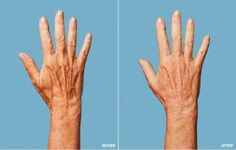 Do-Over For Sun-Damaged Hands: an overview of the latest options to improve spots, sagging skin, etc.