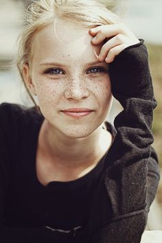 Freckles are beautiful