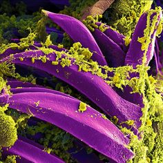 Bubonic Plague: The plague-causing bacterium Yersinia pestis (yellow) adheres to spines (purple) on the insides of a fleas' digestive tracts.
