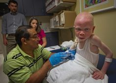 Baraka Cosmas Rusambo, 6, of Tanzania, was fitted for a prosthetic hand recently at Shriners Hospital for Children in Philadelphia. He's one of five children, despised and/or prized for their albinism, receiving free care at the hospital after being attacked and maimed.