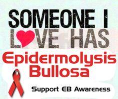 Someone I LOVE has Epidermolysis Bullosa. Support EB Awareness! http://www.ebinfoworld.com