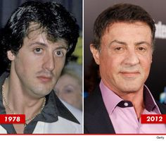 Sylvester Stallone: Good Genes or Good Docs?