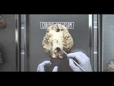▶ The Cerebellum - UBC Flexible Learning - YouTube