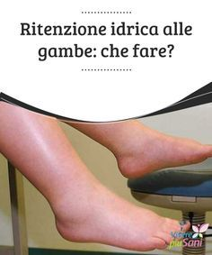 Ritenzione idrica alle #gambe: che fare? #Consigli e #rimedi per ridurre la #ritenzione idrica alle gambe Wellness Fitness, Health Fitness, Health And Nutrition, Health And Wellness, Vicks Vapor, Beauty Habits, Sciatica, Health Advice, Natural Health