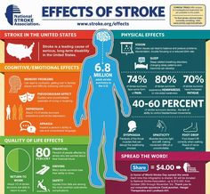 EFFECTS OF STROKE - Although stroke is the fourth leading cause of death in the U., most people don't realize what effects stroke can have on a person's life. Learn the true impact of stroke. World Stroke Day, Stroke Association, Stroke Recovery, Memory Problems, Brain Injury, Brain Aneurysm, Brain Health, Heart Health, Physical Therapy