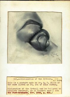 From the Ball Ophthalmology Collection at the National Museum of Health and Medicine. 1898.