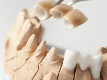 Most oparty na naturalnych zębach, wykonany z porcelany dentystycznej o dużej odporności. Taki most opiera się na sąsiednich zębach i składa się z naturalnie wyglądających zębów sztucznych.