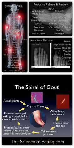 FOODS AVOID GOUT WITH TO