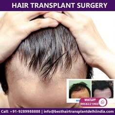 Need hair transplant surgery in Delhi, India. Meet Triple American Board Certified surgeon Dr. Ajaya Kashyap. Contact us anytime with any questions you may have, or to schedule your consultation for cosmetic and plastic surgery clinic in Delhi, India. Call: +91-9289988888 Email: info@besthairtransplantdelhiindia.com Web: www.besthairtransplantdelhiindia.com #HairTransplant #hairtransplantsurgeon #eyebrow #eyelash #beard #moustaches #cosmeticsurgery #plasticsurgeon #drkashyap #delhi #india Eyelashes, Eyebrows, Hair Transplant Surgery, Moustaches, Delhi India, Plastic Surgery, Schedule, Clinic, Meet