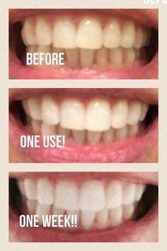 Best Whitening Toothpaste >> 15 Best Whitening Fluoride Toothpaste Images In 2017 Whitening