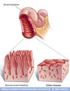 Your small intestine is lined with tiny hair-like projections called villi, which work to absorb vitamins, minerals and other nutrients from the food you eat. Celiac disease results in damage to the villi that leaves your body unable to absorb nutrients necessary for health and growth.