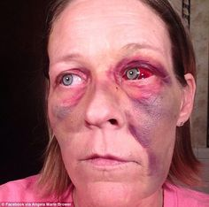 Appalling: Angela Brower, 37, of Memphis, Tennessee, says that on May 18, her ex-boyfriend, Walter Bradley, came to her house and attacked her, smashing the orbital bone around her eye, breaking her nose, and leaving her with extensive bruising