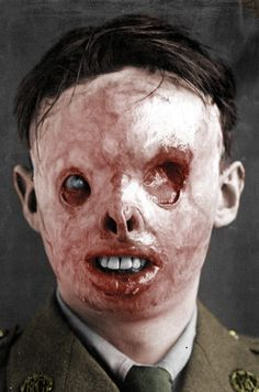 The effects of Mustard gas.
