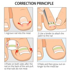 Our Ingrown Toe Nail Correction Stickers are designed to pull your nails back into their proper position. Soon, you'll have healthy nails growing once again. Manicure Y Pedicure, Pedicure Tools, Pedicure At Home, Beauty Care, Beauty Hacks, Ingrown Nail, Ingrown Toenail Remedies, Sunburn Remedies, Curved Nails