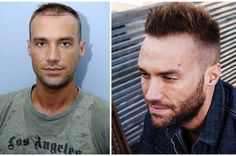 Calum Best Has His Second FUE Hair Transplant To Add Density Results Should Be Fully