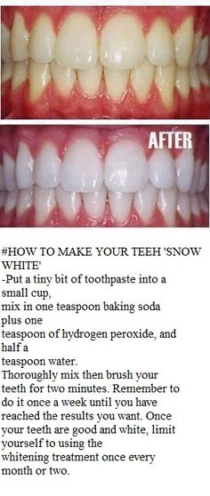 teeth whitening home remedy... Ok when I first saw this I thought no way, its…