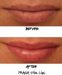 Affordable Lip Plumper - Visit http://www.pricecanvas.com/health/lip-plumper/ For Lip Plumper.