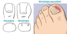 Ways to ingrown nails - Step to Health- # CareSkin- Ways to ingrown nails - Step to Health Anna Krzewińska and . Nail Treatment, Skin Treatments, Hand Soak, Wood Nails, How To Cut Nails, Tanning Cream, Ingrown Toe Nail, Hand Massage, Exfoliating Soap
