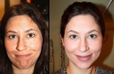 Microdermabrasion before and after plus tips to maintain your treatments #acnebeforeandafter