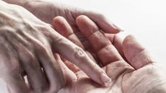 substitutes for antihistamines livestrong Hands