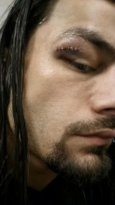 Here it is Joe Anoa'i with his new battle scar