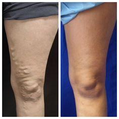 Bacaklarda derinin hemen altındaki toplardamarların genişlemesine varis denir. Bacaklarımızda ki toplardamarlar kirli kanın kalp ve akciğerlere taşıyan damarlardır ve bu damarların genişlemesi sonucu varis oluşur. Ayakta uzun süre durma özellikle bayanlarda aşırı kilo ve genetik yatkınlık varis oluşumunun en önemli sebepleridir. İnsanlar arasında %20-40 arasında görülmektedir. Ameliyatsız Varis Tedavisi Varisler çıplak gözle görülebilirler ve