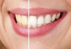 Bez wizyty u dentysty, palenie papierosów, picie kawy i herbaty, nasze zęby mogą stać się żółte. Wybielanie zębów okazuje się jedynym wybawieniem. Teeth, Facial Aesthetics, Stained Teeth, Natural Teeth Whitening, Benefits Of Massage, Tooth