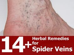 14+ Herbal Remedies for Spider Veins. Of the methods shared the Lemon Oil  the Ginkgo Biloba remedies are the ones I would consider trying.