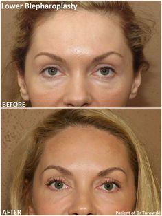 Eyelid Surgery, Girl Blog