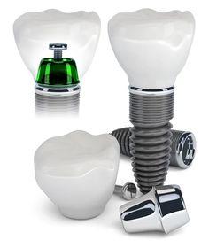studio dentistico  dentimax | trova il tuo sorriso visitando albania