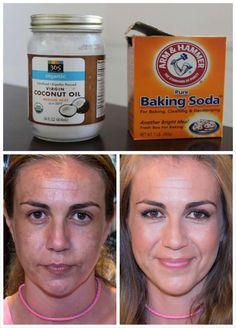Nunca pensé que 2 ingredientes quitarían las manchas, acné, cicatrices y arrugas de mi piel. Es increíble