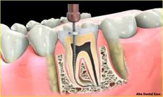 Zaveri of Alta Dental Care, a top rated dentist in Upland. Same Day Appointment for Family and emergency dental to restore your smile. Abscess Tooth, Tooth Pain, Dental Procedures, Dental Problems, Root Canal, Dental Services, Dental Care, Dentistry, Teeth