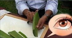 How to Make Aloe Vera Gel. Aloe vera gel is one of nature's great healers. It can be used to treat sunburn, moisturize skin and soothe irritation. To make your own, all you need is a healthy aloe plant. Aloe vera gel can be mixed with. Eye Treatment, Aloe Vera Gel, Home Remedies, Natural Remedies, Health Remedies, Fit Bodies, Aloe Vera, Natural Treatments, Weight Loss Diets