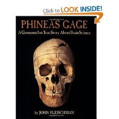 Phineas Gage - A gruesome but true story