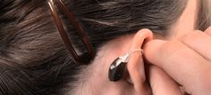 "Universal Hearing Solutions are a coveted organization which is engaged in trading, supplying and retailing a wide assortment of ""Digital Hearing Aids"". The products offered by us are procured from a well-known brand.  Features:      Ideal for people suffering from severe to moderate hearing loss     Allows better understanding     Makes high-pitched sound audible"