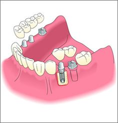 Implants, bridges, and crowns