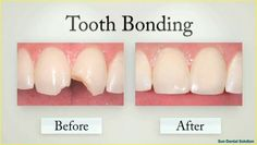 Teeth Bonding, Dental Bonding, Dental Health, Dental Care, Fix Teeth, Dental Fillings, Dental Cosmetics, Smile Makeover, Stained Teeth