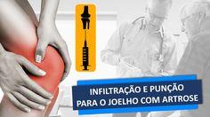 www.cirurgiadejoelho.med.br / O DR. ADRIANO KARPSTEIN, médico ortopedista especialista em Cirurgia de Joelho e Medicina Esportiva, explica sobre INFILTRAÇÃO E PUNÇÃO PARA O JOELHO COM ARTROSE. / #joelho #cirurgiadejoelho