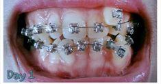 Hukum Kawat Gigi - Bolehkah Menggunakan Kawat Gigi dalam ISLAM ?